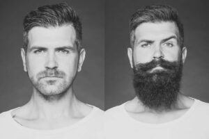 szakállnövesztés